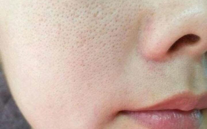 [update 2021] top 10 serum se khít lỗ chân lông cho da dầu mụn