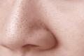 [Reivew] Top 5 Mặt nạ trị mụn đầu đen hiệu quả nhất