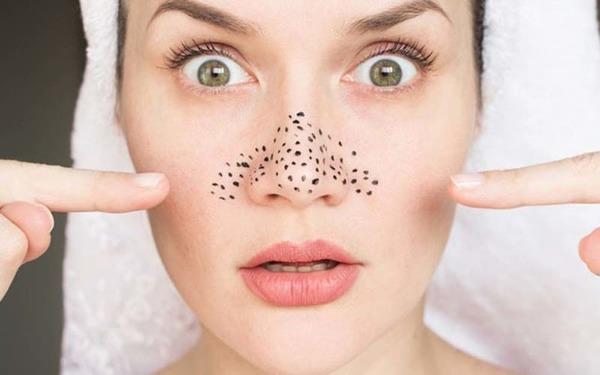 [reivew] top 5 mặt nạ trị mụn đầu đen hiệu quả nhất - nguồn ảnh: internet