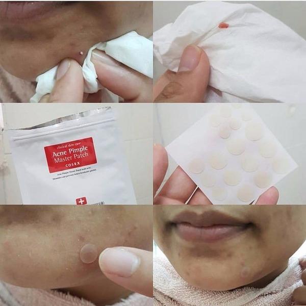 [review] miếng dán mụn acne pimple master patch cosrx - nguồn ảnh: internet